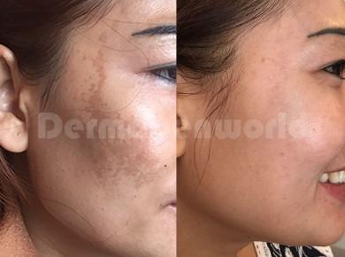 Melasma/ pigmentace před a po