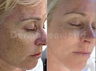 Stárnutí /poškození sluncem před a po