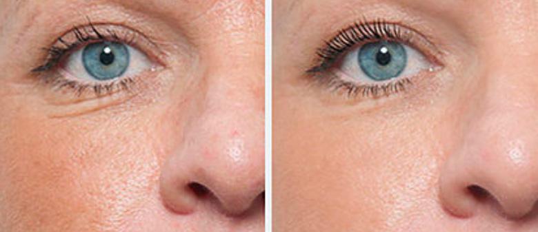 Před a po - vrásky okolo očí